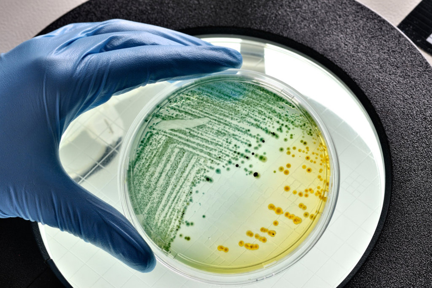 Picture of a petri dish with e.coli bacteria